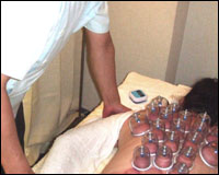 cupping01